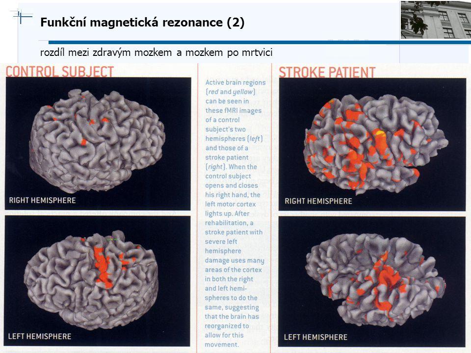B i o c y b e r n e t i c s G r o u p Funkční magnetická rezonance (2) rozdíl mezi zdravým mozkem a mozkem po mrtvici