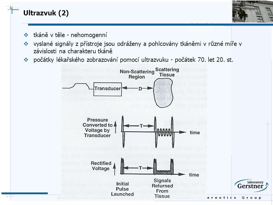 B i o c y b e r n e t i c s G r o u p Ultrazvuk (2)  tkáně v těle - nehomogenní  vyslané signály z přístroje jsou odráženy a pohlcovány tkáněmi v rů