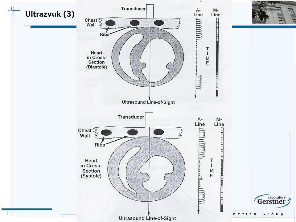 B i o c y b e r n e t i c s G r o u p Ultrazvuk (3)