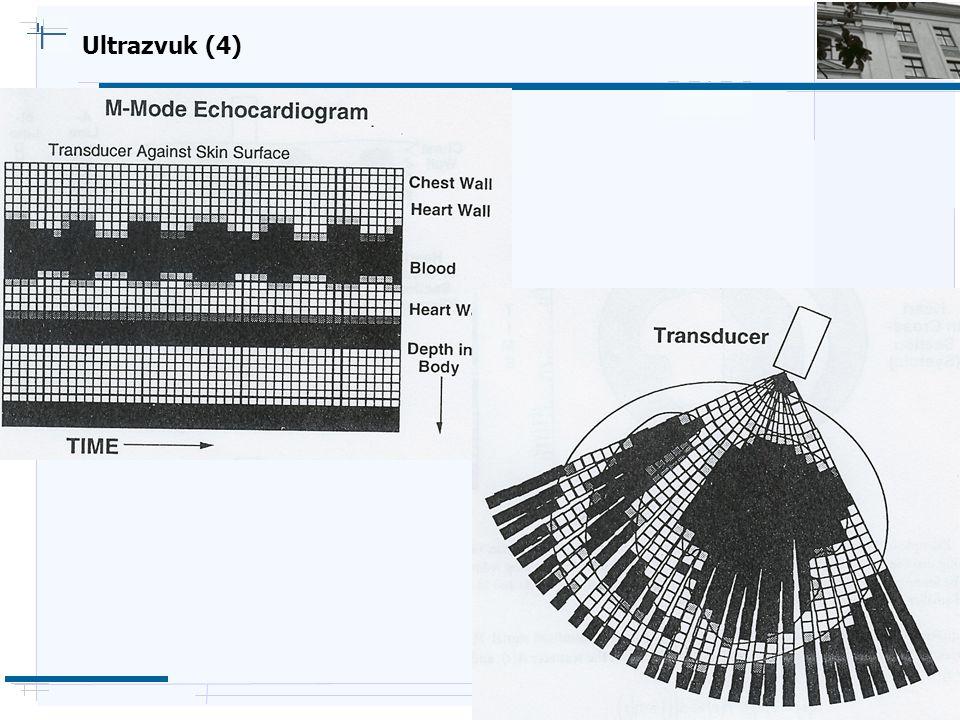 B i o c y b e r n e t i c s G r o u p Ultrazvuk (4)