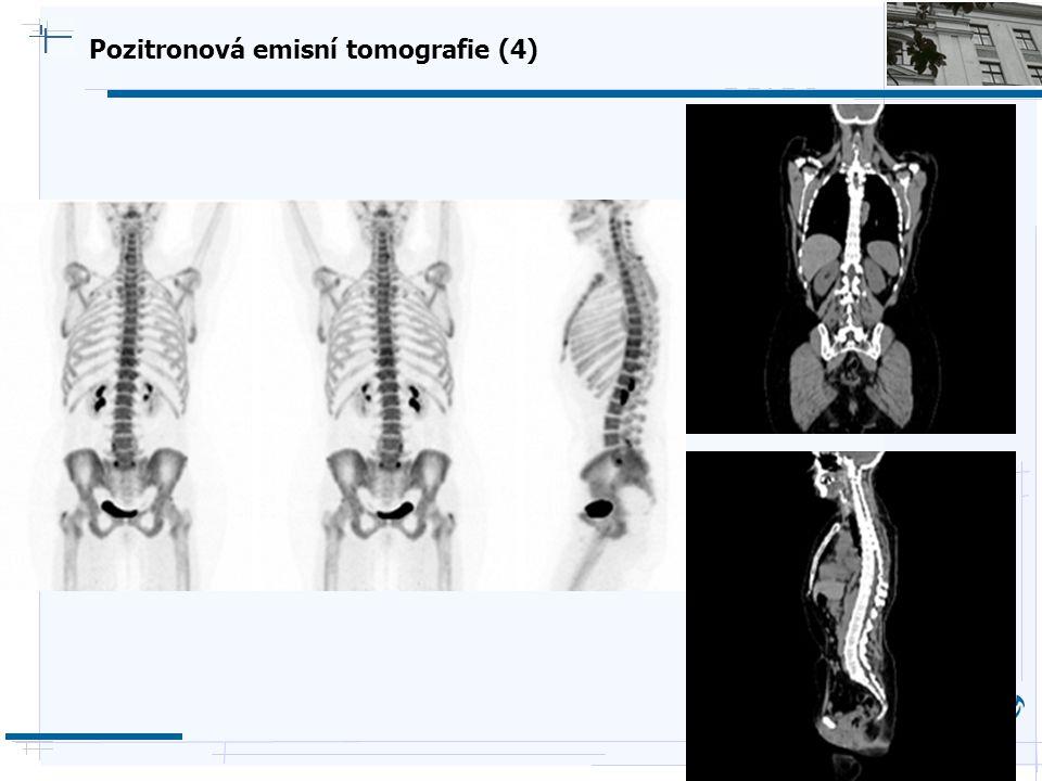 B i o c y b e r n e t i c s G r o u p Pozitronová emisní tomografie (4)