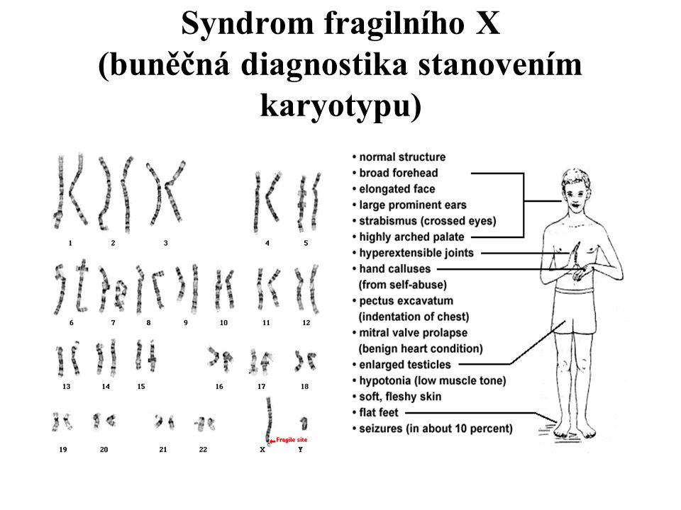 Syndrom fragilního X (buněčná diagnostika stanovením karyotypu)
