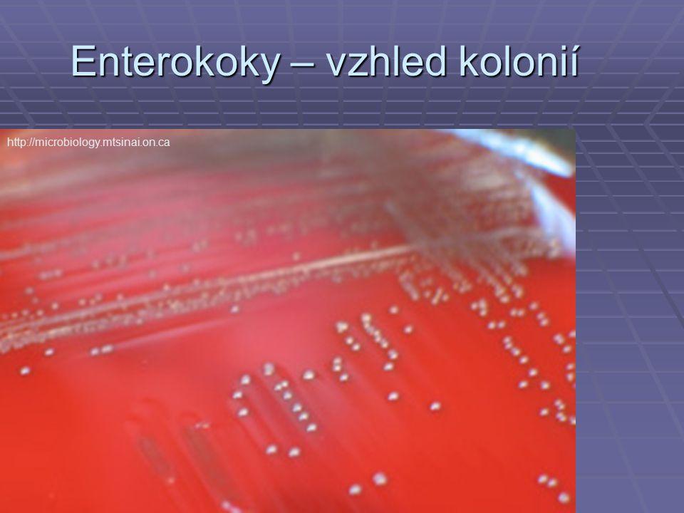 Enterokoky – vzhled kolonií http://microbiology.mtsinai.on.ca