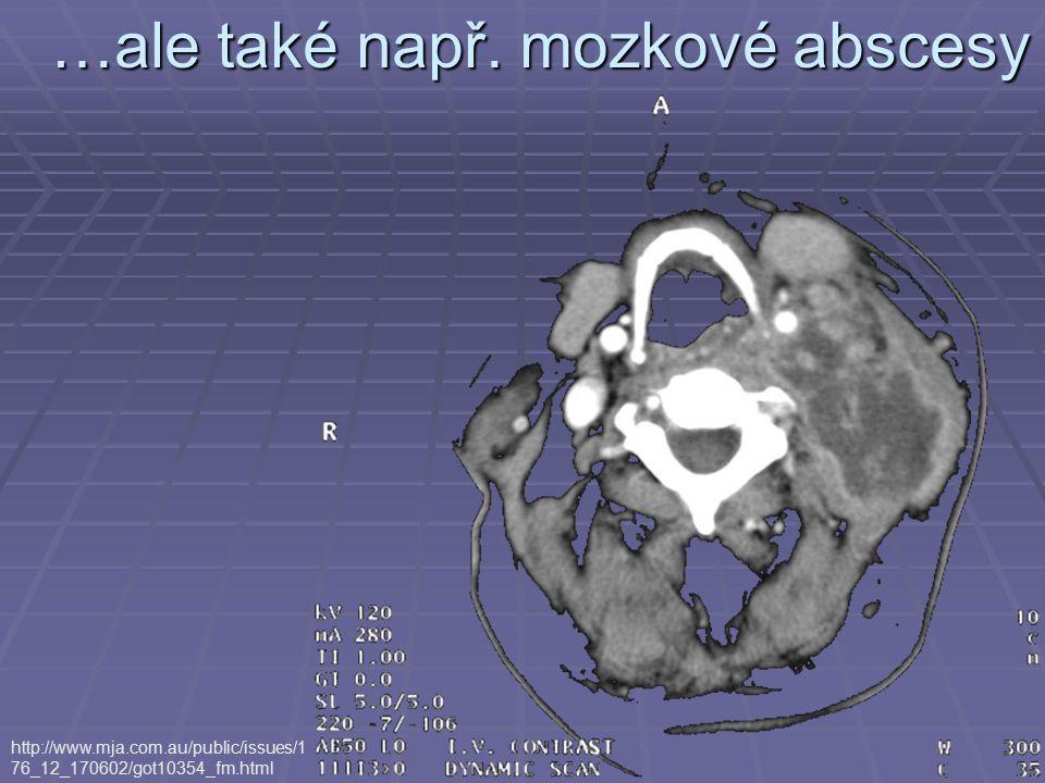 …ale také např. mozkové abscesy http://www.mja.com.au/public/issues/1 76_12_170602/got10354_fm.html