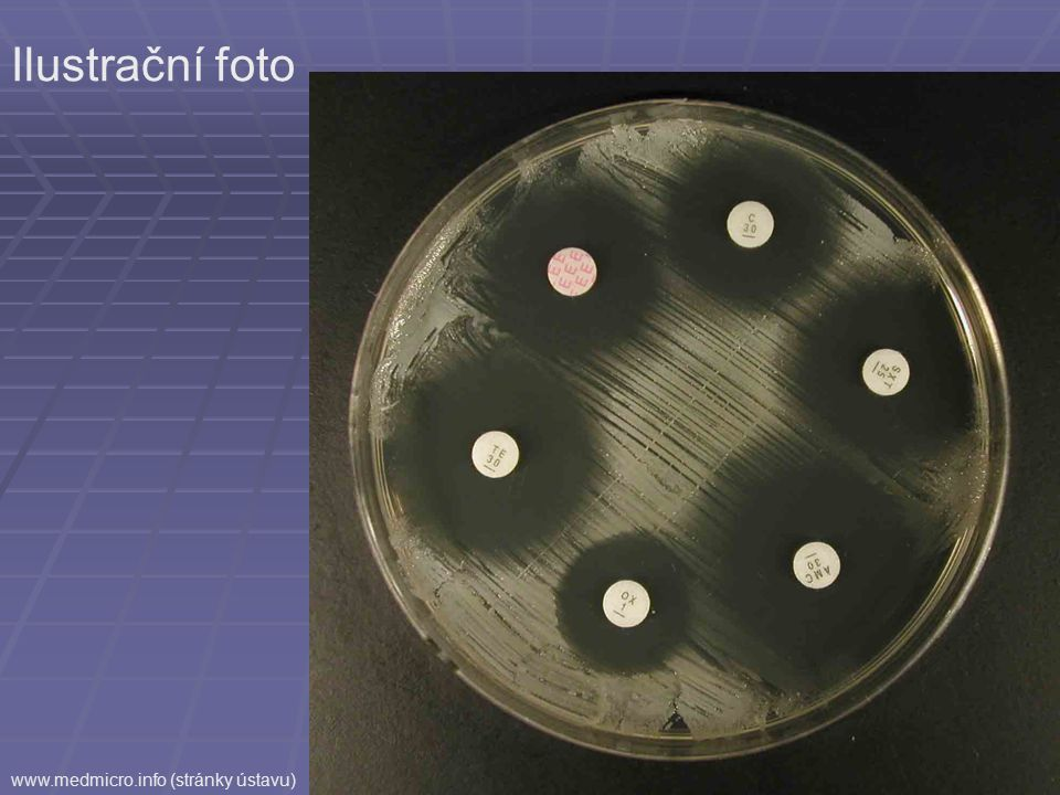Ilustrační foto www.medmicro.info (stránky ústavu)