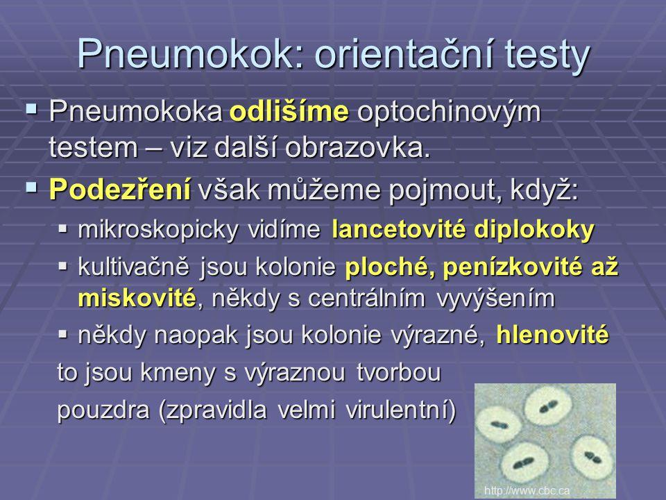  Pneumokoka odlišíme optochinovým testem – viz další obrazovka.  Podezření však můžeme pojmout, když:  mikroskopicky vidíme lancetovité diplokoky 