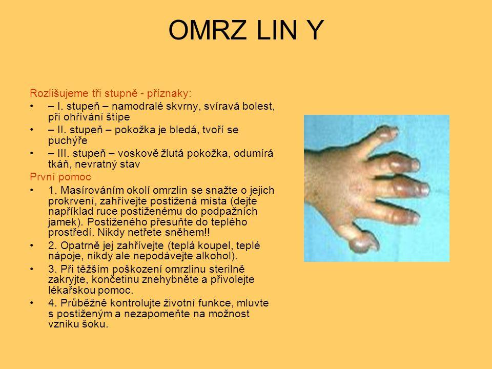 OMRZ LIN Y Rozlišujeme tři stupně - příznaky: – I. stupeň – namodralé skvrny, svíravá bolest, při ohřívání štípe – II. stupeň – pokožka je bledá, tvoř