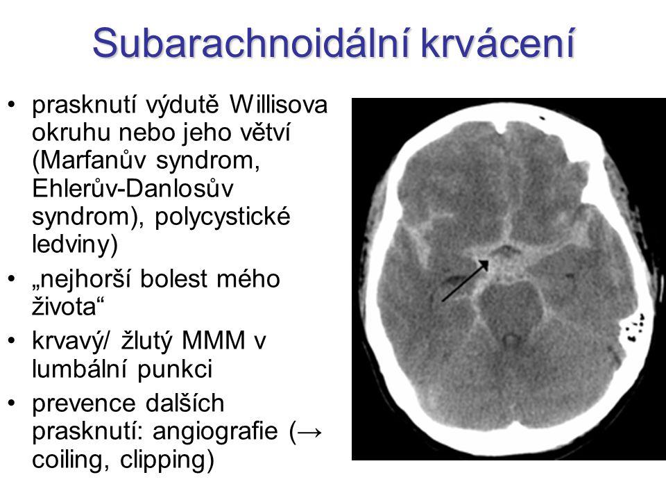 """Subarachnoidální krvácení prasknutí výdutě Willisova okruhu nebo jeho větví (Marfanův syndrom, Ehlerův-Danlosův syndrom), polycystické ledviny) """"nejhorší bolest mého života krvavý/ žlutý MMM v lumbální punkci prevence dalších prasknutí: angiografie (→ coiling, clipping)"""