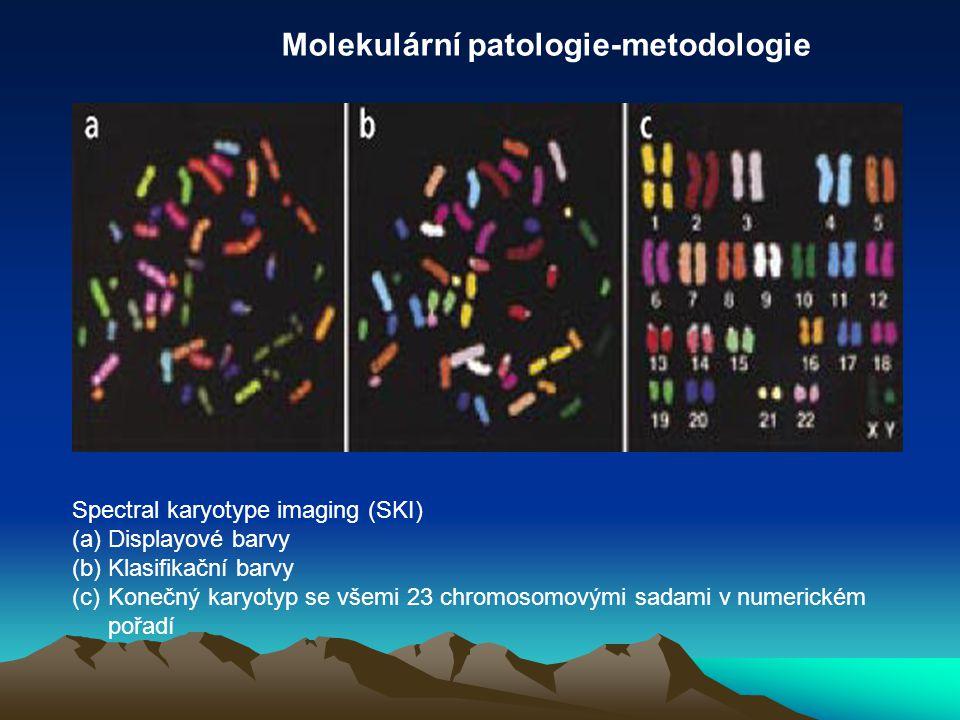 Spectral karyotype imaging (SKI) (a)Displayové barvy (b)Klasifikační barvy (c)Konečný karyotyp se všemi 23 chromosomovými sadami v numerickém pořadí M