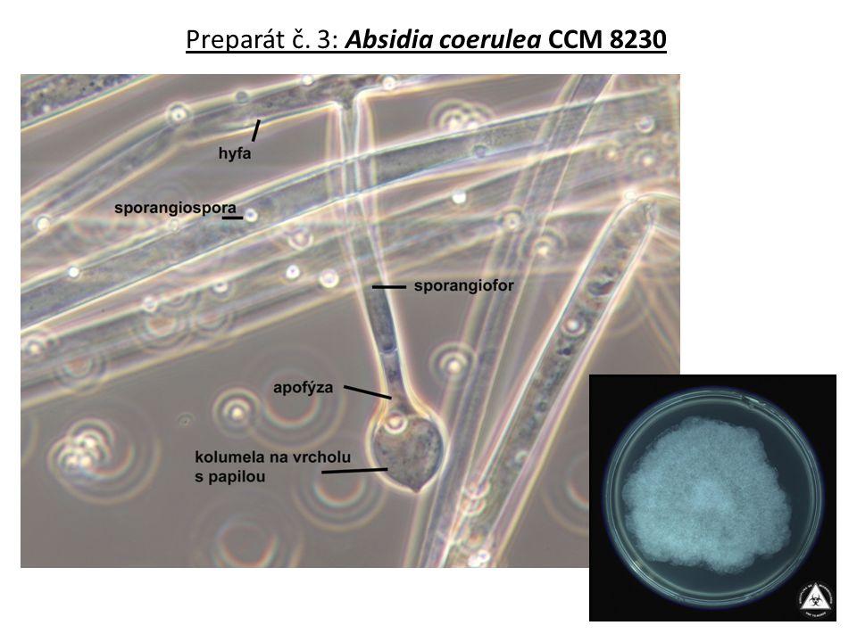 Preparát č.14: Aspergillus flavus CCM 8363