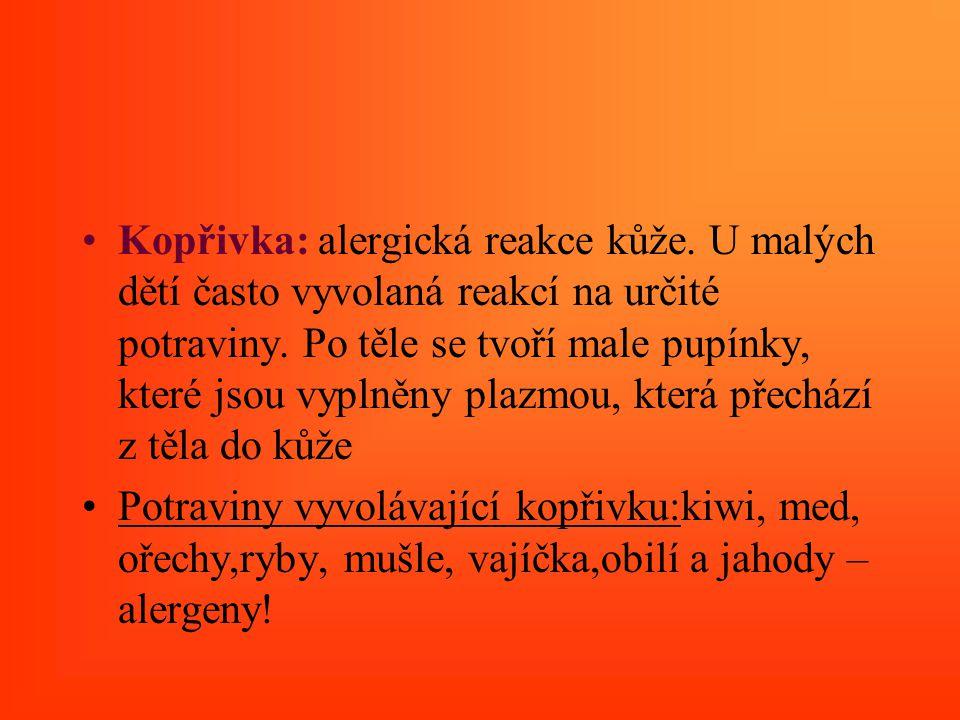 Kopřivka: alergická reakce kůže. U malých dětí často vyvolaná reakcí na určité potraviny. Po těle se tvoří male pupínky, které jsou vyplněny plazmou,