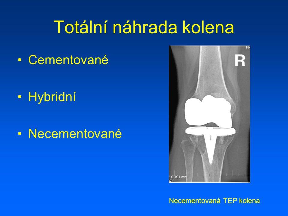 Revizní náhrada kolena - dříky