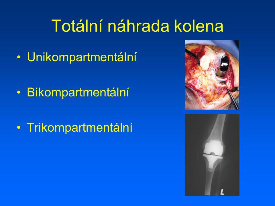 Totální náhrada kolena Unikondylární Kondylární - zachování PCL - náhrada PCL Kondylární s dříky Šarnýrový Tumorózní