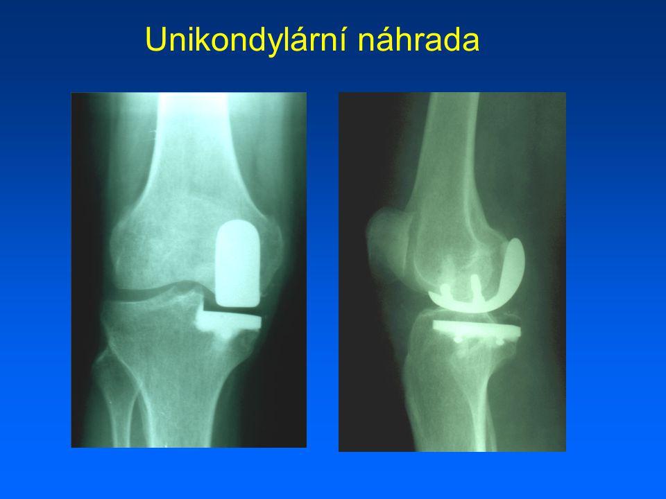 Septické uvolnění TP kolena