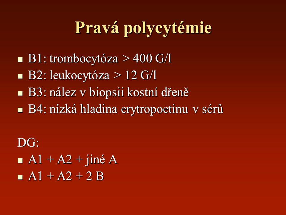 Pravá polycytémie B1: trombocytóza > 400 G/l B1: trombocytóza > 400 G/l B2: leukocytóza > 12 G/l B2: leukocytóza > 12 G/l B3: nález v biopsii kostní d