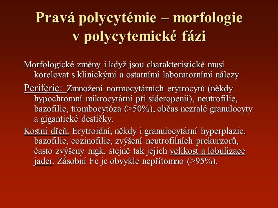 Pravá polycytémie – morfologie v polycytemické fázi Morfologické změny i když jsou charakteristické musí korelovat s klinickými a ostatními laboratorn