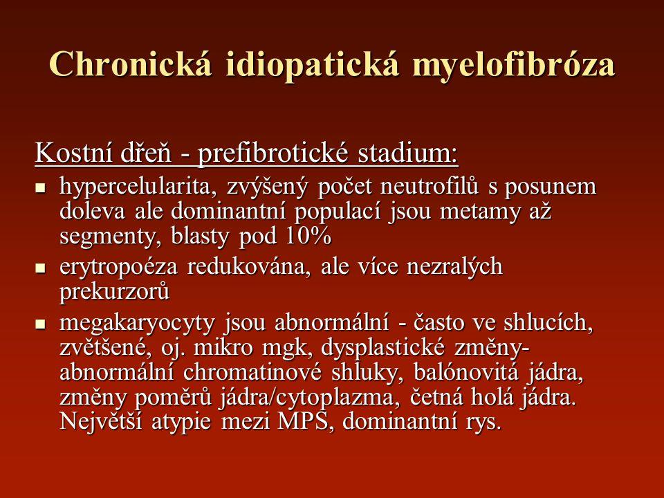 Chronická idiopatická myelofibróza Kostní dřeň - prefibrotické stadium: hypercelularita, zvýšený počet neutrofilů s posunem doleva ale dominantní popu