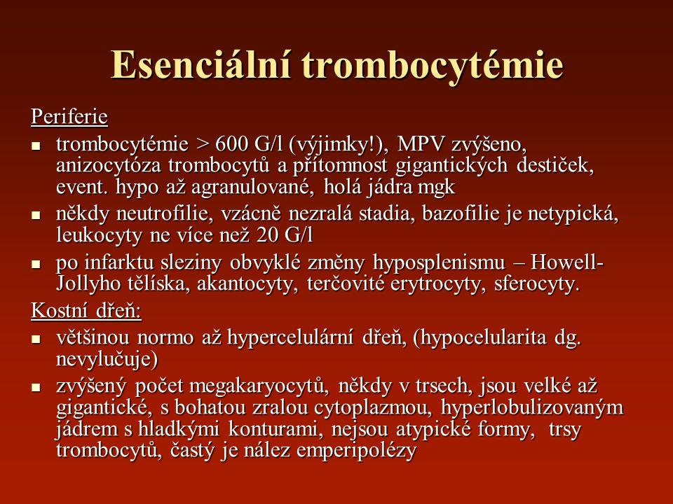 Esenciální trombocytémie Periferie trombocytémie > 600 G/l (výjimky!), MPV zvýšeno, anizocytóza trombocytů a přítomnost gigantických destiček, event.