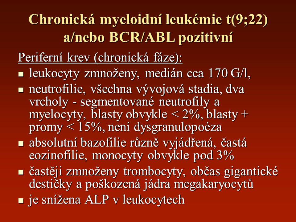 Chronická myeloidní leukémie t(9;22) a/nebo BCR/ABL pozitivní Periferní krev (chronická fáze): leukocyty zmnoženy, medián cca 170 G/l, leukocyty zmnož