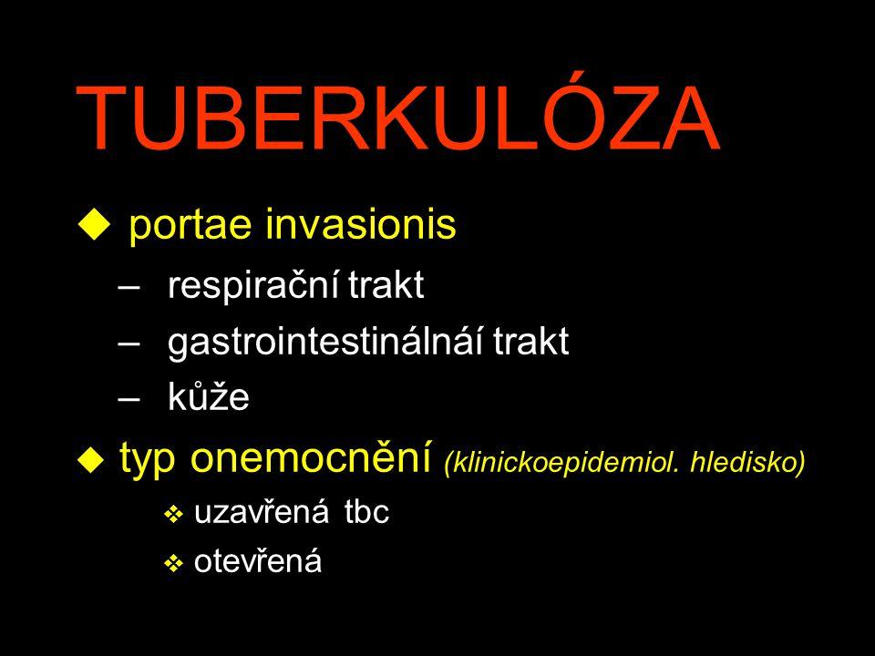 TUBERKULÓZA u portae invasionis – respirační trakt – gastrointestinálnáí trakt – kůže u typ onemocnění (klinickoepidemiol. hledisko) v uzavřená tbc v