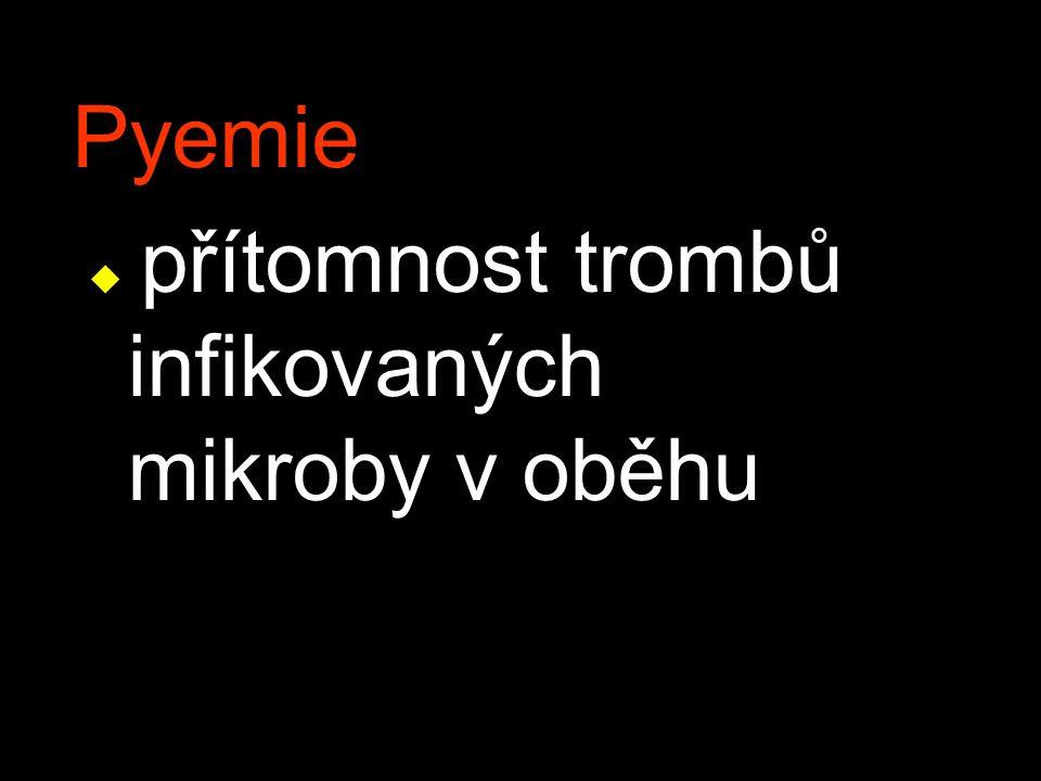 Pyemie u přítomnost trombů infikovaných mikroby v oběhu