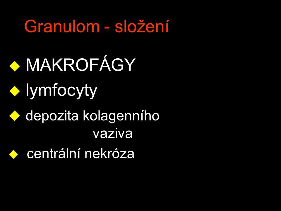 Granulom - složení u MAKROFÁGY u lymfocyty u depozita kolagenního vaziva u centrální nekróza