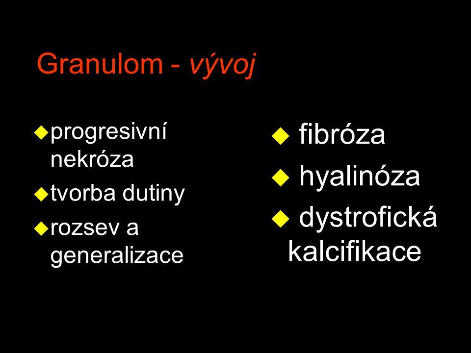 Granulomatózní zánětlivé nemoci -1 v TUBERKULÓZA v sarkoidóza v syphilis v lepra v Lymeská borrelióza v inf.