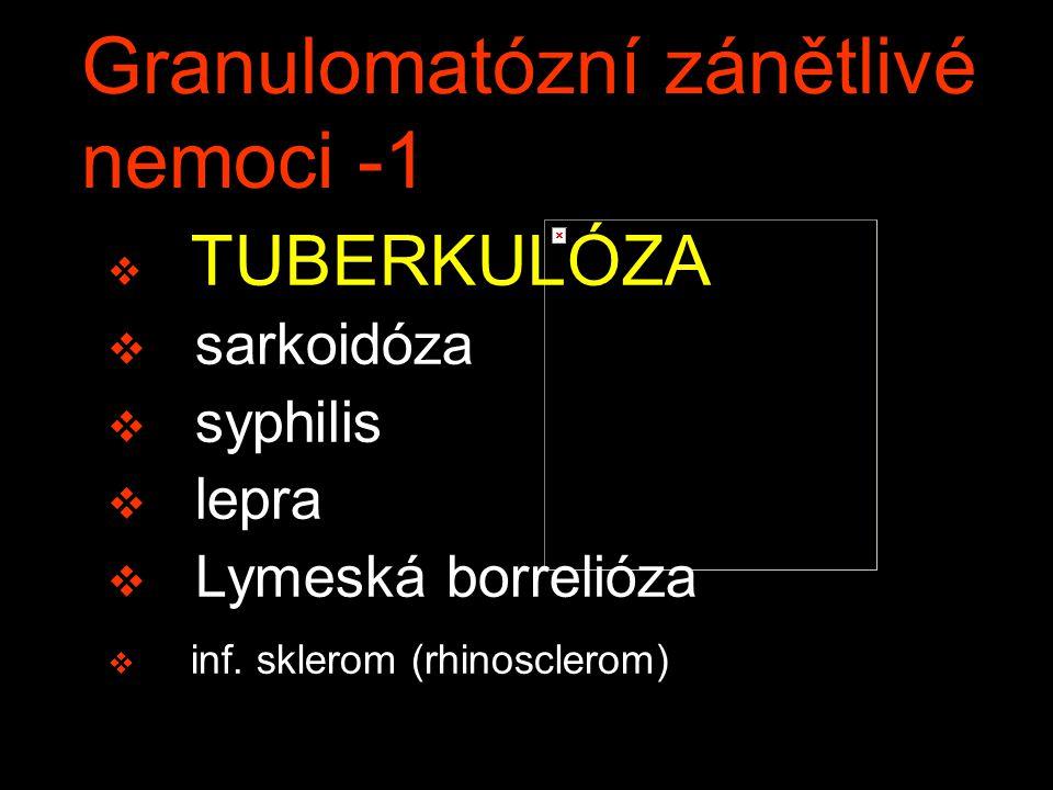 Granulomatózní zánětlivé nemoci -1 v TUBERKULÓZA v sarkoidóza v syphilis v lepra v Lymeská borrelióza v inf. sklerom (rhinosclerom)