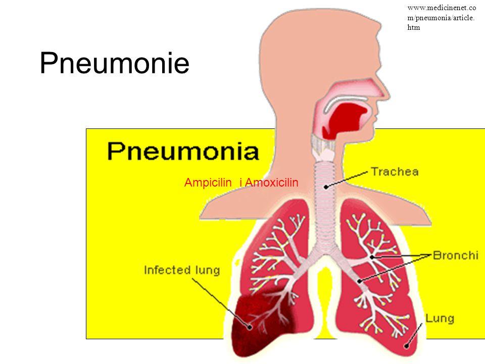 Pneumonie www.medicinenet.co m/pneumonia/article. htm Ampicilin i Amoxicilin