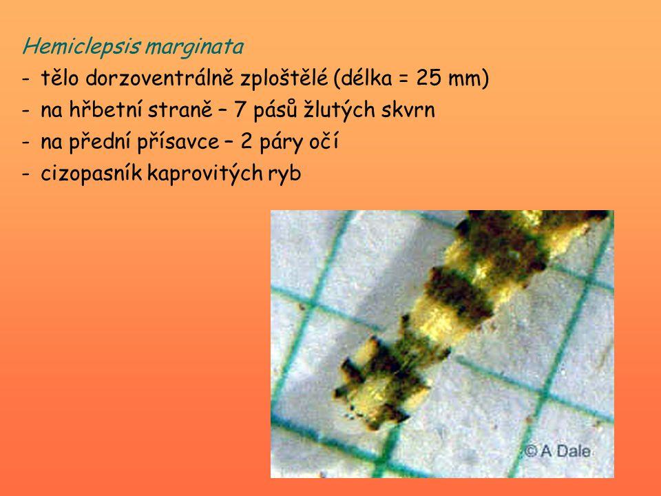 Hemiclepsis marginata -tělo dorzoventrálně zploštělé (délka = 25 mm) -na hřbetní straně – 7 pásů žlutých skvrn -na přední přísavce – 2 páry očí -cizopasník kaprovitých ryb
