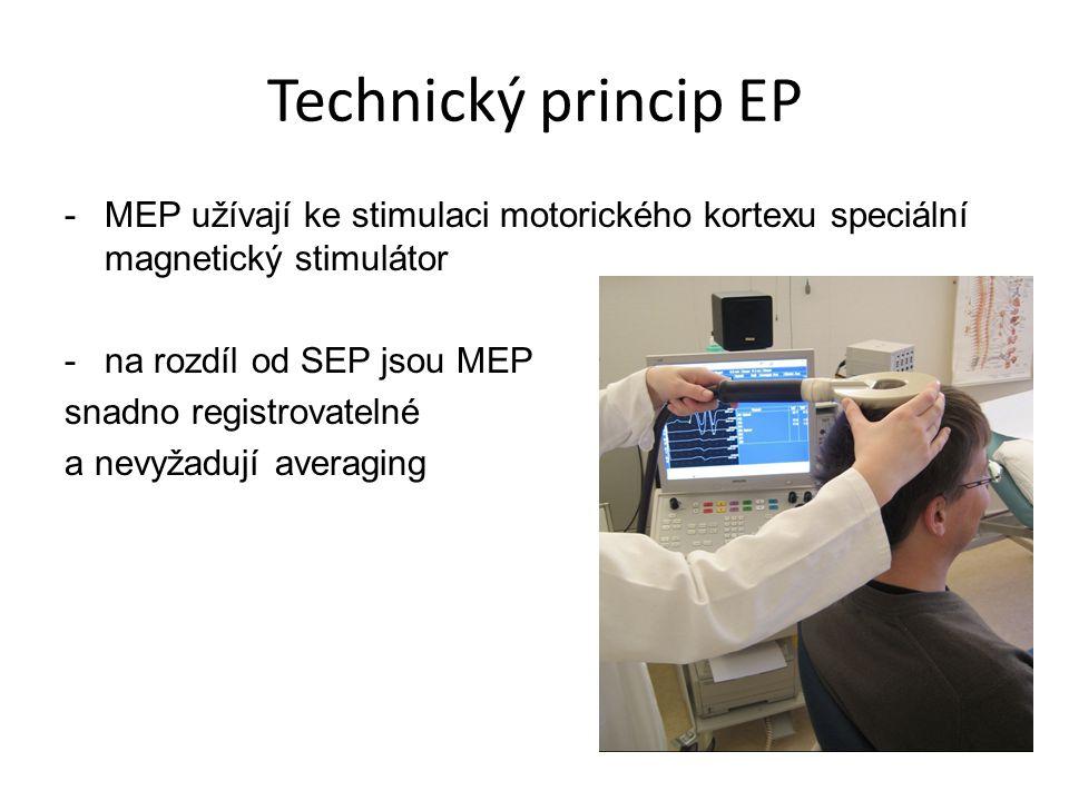 Technický princip EP -MEP užívají ke stimulaci motorického kortexu speciální magnetický stimulátor -na rozdíl od SEP jsou MEP snadno registrovatelné a