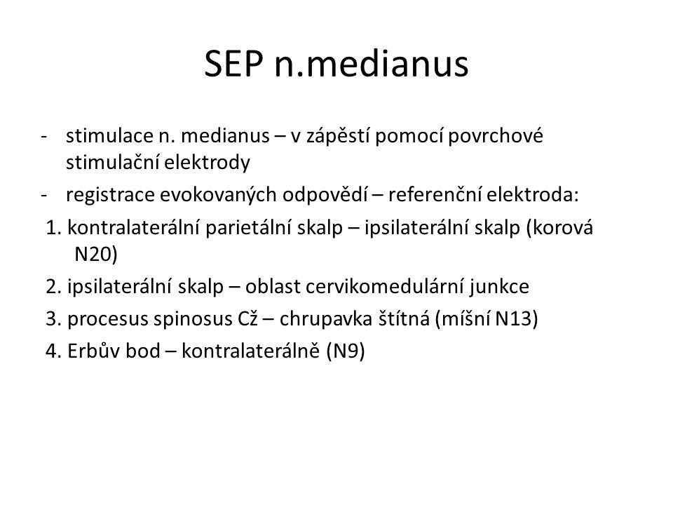 SEP n.medianus -stimulace n. medianus – v zápěstí pomocí povrchové stimulační elektrody -registrace evokovaných odpovědí – referenční elektroda: 1. ko