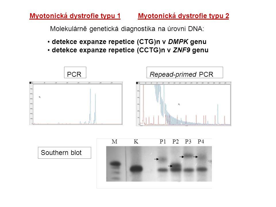 Myotonická dystrofie typu 1Myotonická dystrofie typu 2 Molekulárně genetická diagnostika na úrovni DNA: detekce expanze repetice (CTG)n v DMPK genu de
