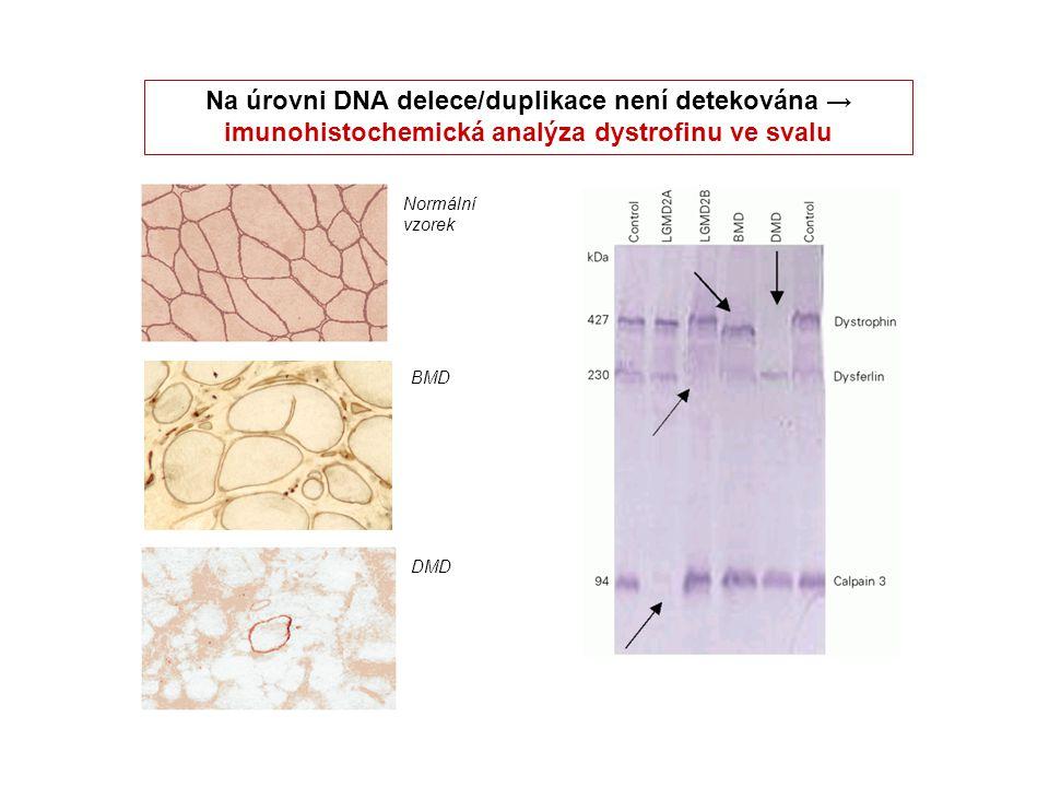 Na úrovni DNA delece/duplikace není detekována → imunohistochemická analýza dystrofinu ve svalu Normální vzorek BMD DMD