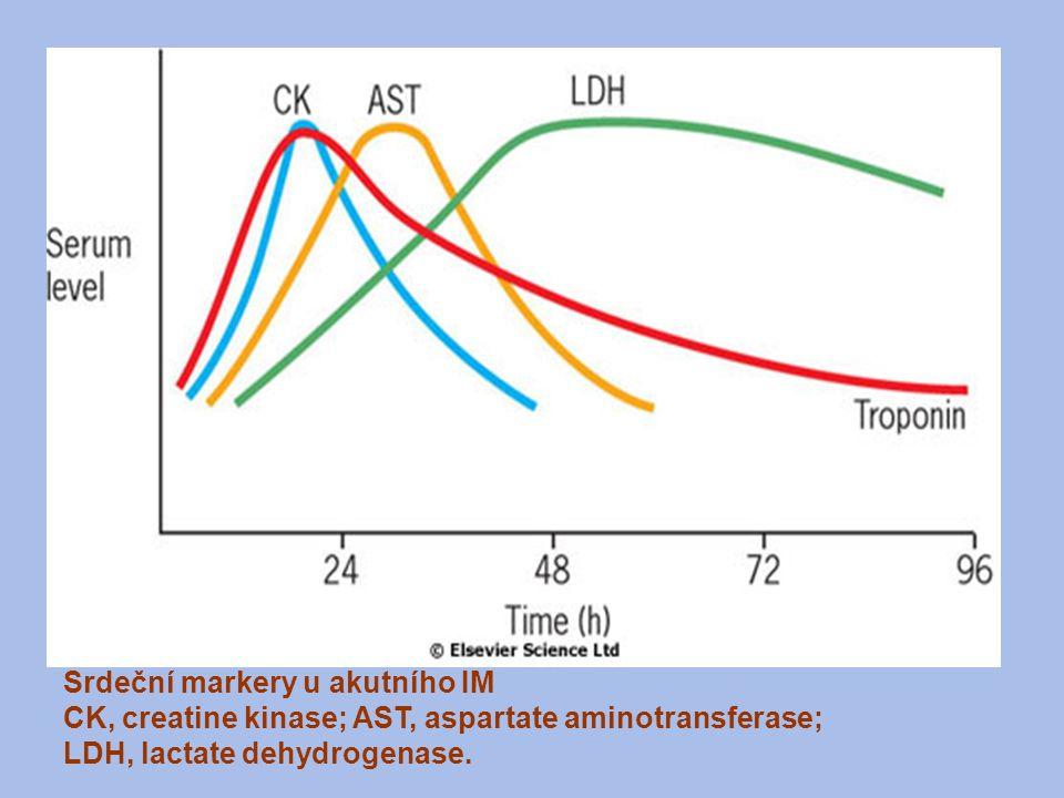 Srdeční markery u akutního IM CK, creatine kinase; AST, aspartate aminotransferase; LDH, lactate dehydrogenase.