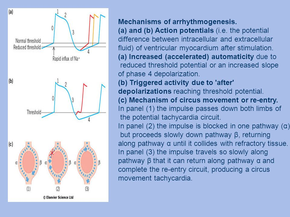 Mechanisms of arrhythmogenesis. (a)and (b) Action potentials (i.e. the potential difference between intracellular and extracellular fluid) of ventricu