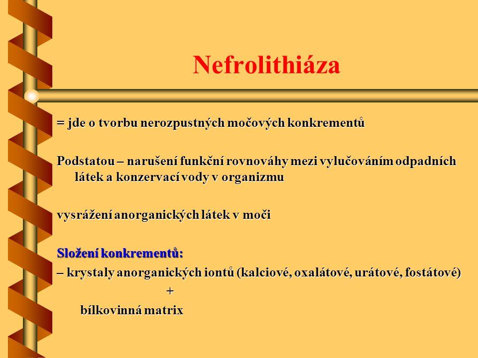 Nefrolithiáza = jde o tvorbu nerozpustných močových konkrementů Podstatou – narušení funkční rovnováhy mezi vylučováním odpadních látek a konzervací v