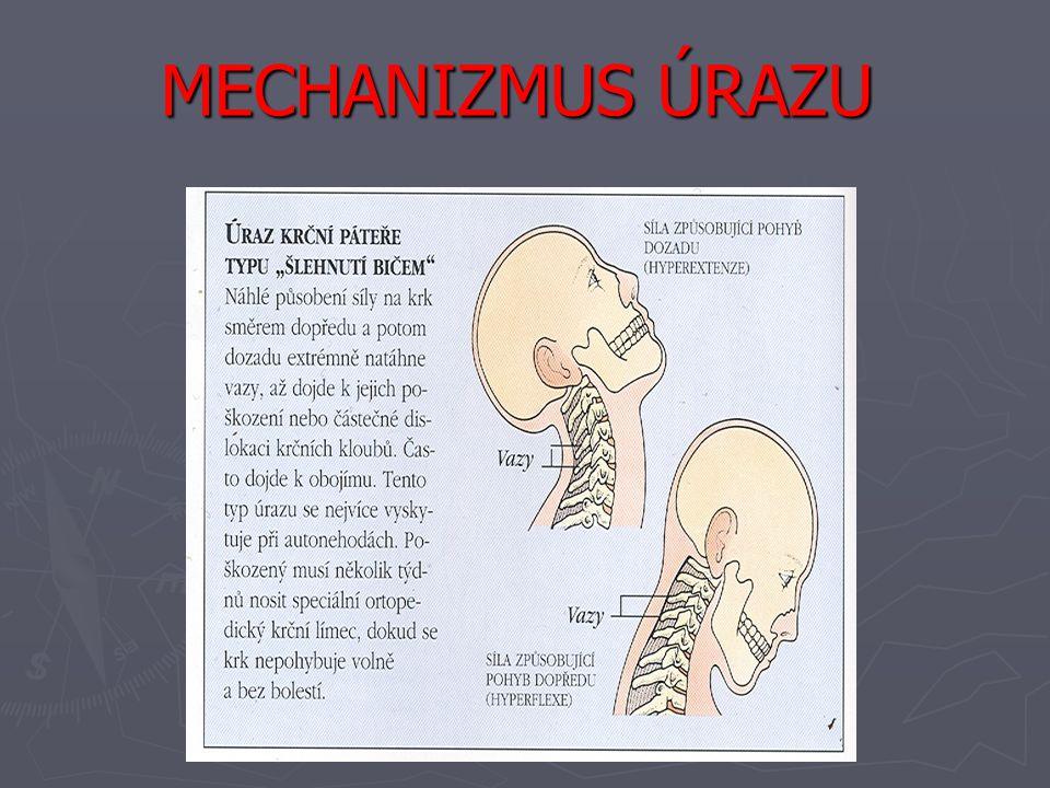 MECHANIZMUS ÚRAZU