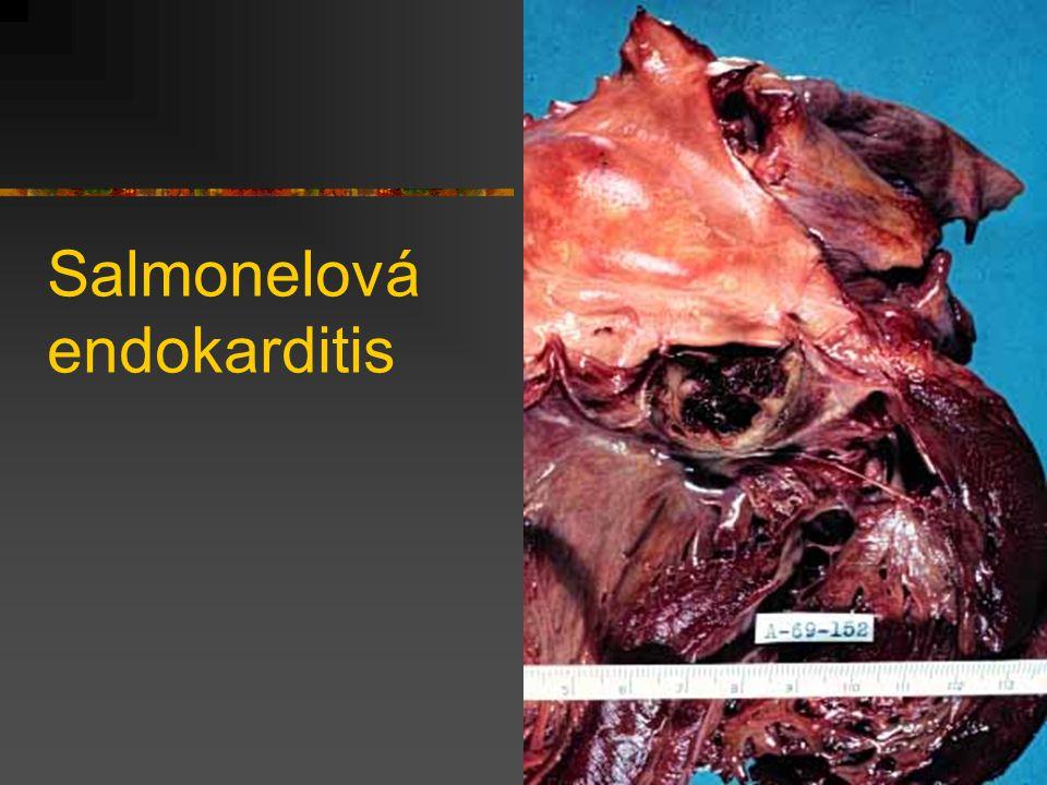 Salmonelová endokarditis