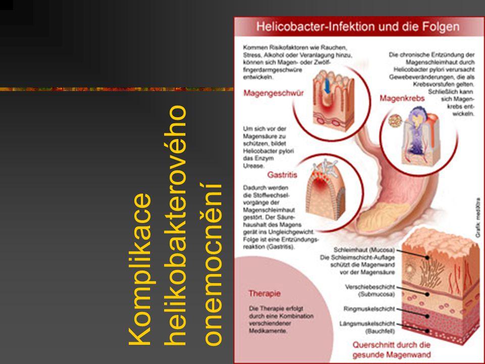 Komplikace helikobakterového onemocnění