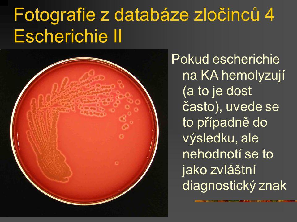 Fotografie z databáze zločinců 4 Escherichie II Pokud escherichie na KA hemolyzují (a to je dost často), uvede se to případně do výsledku, ale nehodno