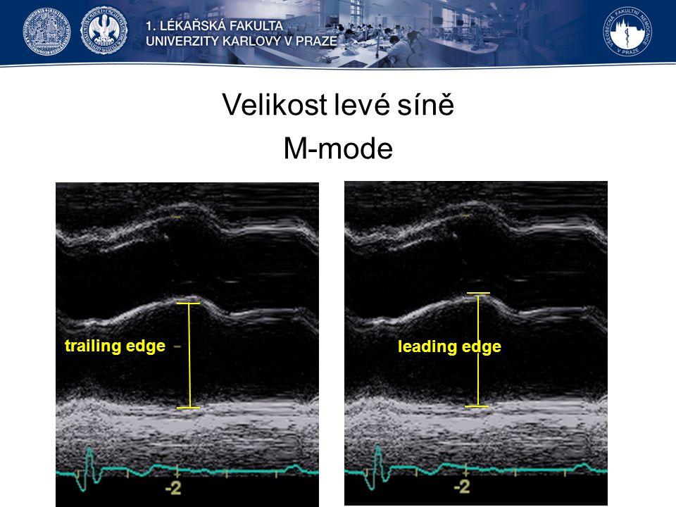 Velikost levé síně M-mode trailing edge leading edge
