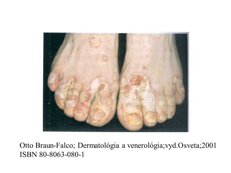 Otto Braun-Falco; Dermatológia a venerológia;vyd.Osveta;2001 ISBN 80-8063-080-1