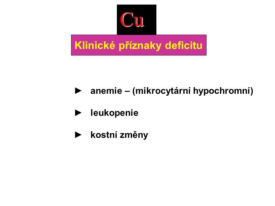 ► anemie – (mikrocytární hypochromní) ► leukopenie ► kostní změny Cu Klinické příznaky deficitu