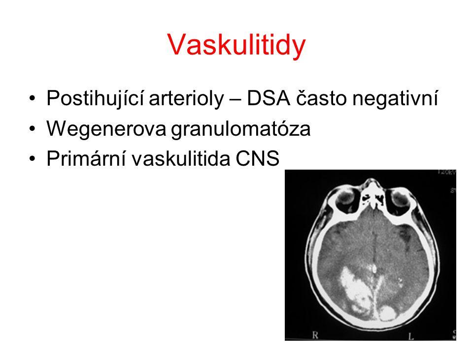 """Kavernozní angiomy v 50 % vícečetné """"popcorn-like vzhled genetické vyšetření riziko rebleedingu – 0,5-1 %/rok"""