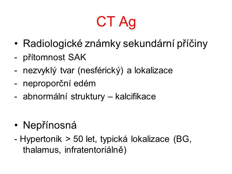 Negativní CT nález Těžká anémie – Hb < 80 g/l