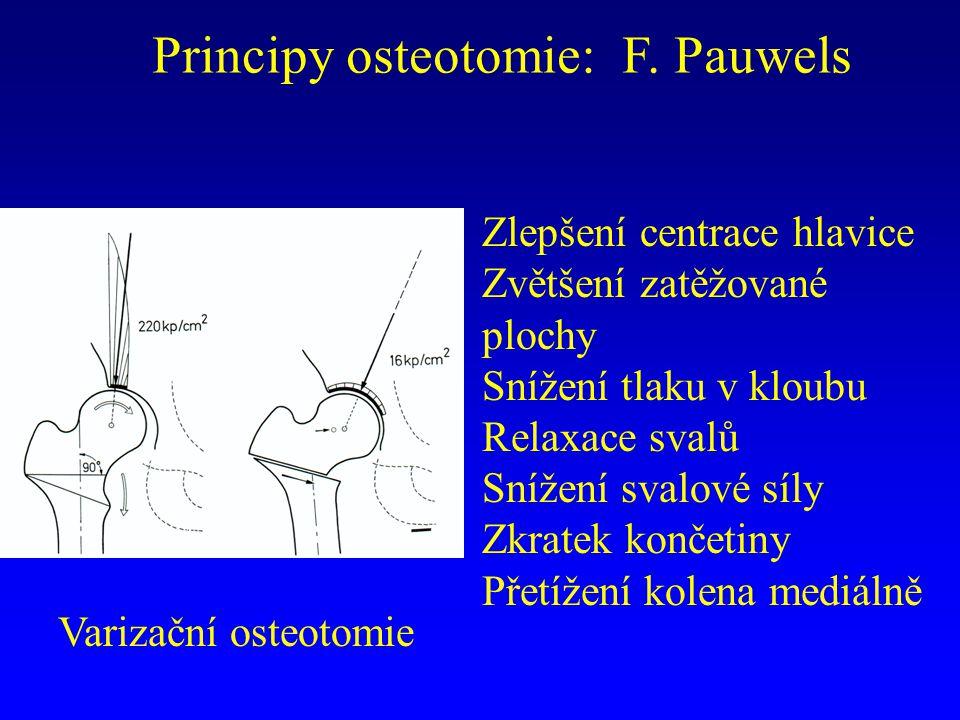 Principy osteotomie: F. Pauwels Varizační osteotomie Zlepšení centrace hlavice Zvětšení zatěžované plochy Snížení tlaku v kloubu Relaxace svalů Snížen