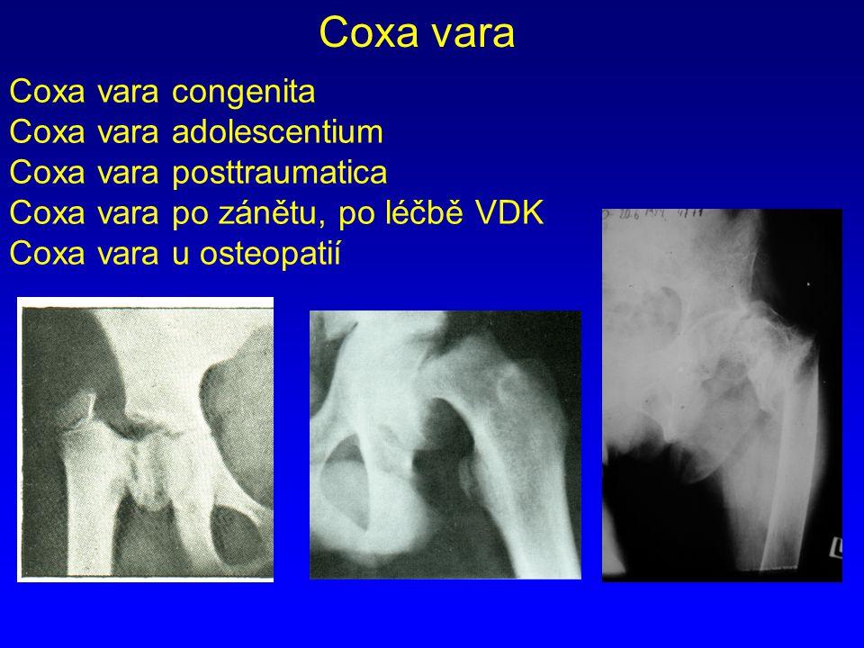 Coxa vara congenita Coxa vara adolescentium Coxa vara posttraumatica Coxa vara po zánětu, po léčbě VDK Coxa vara u osteopatií Coxa vara