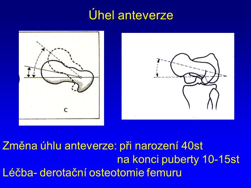 Změna úhlu anteverze: při narození 40st na konci puberty 10-15st Léčba- derotační osteotomie femuru Úhel anteverze