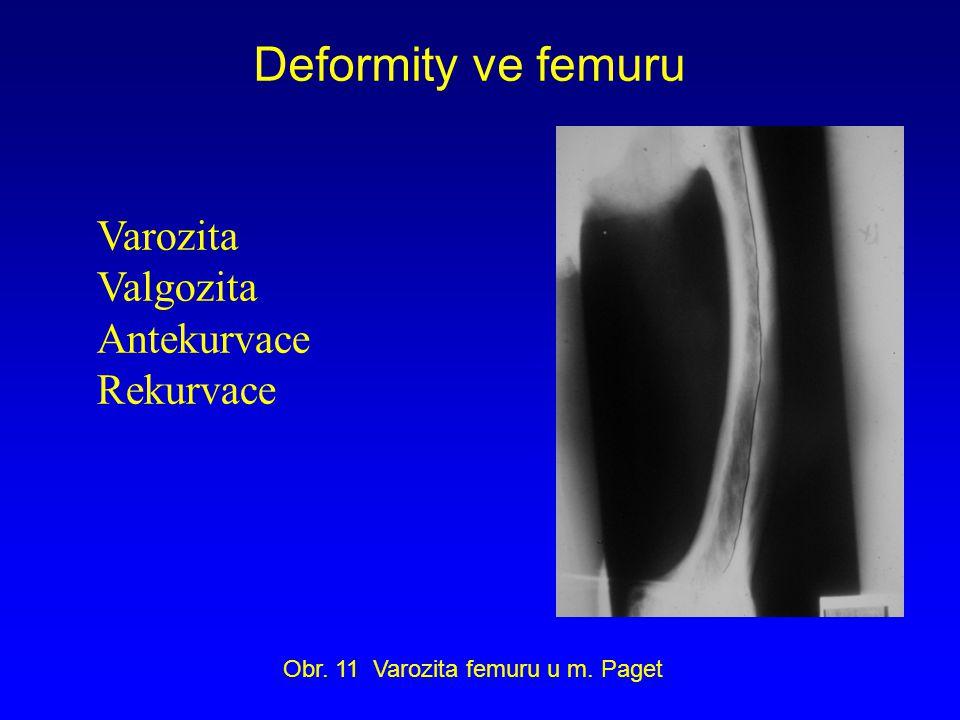 Varozita Valgozita Antekurvace Rekurvace Deformity ve femuru Obr. 11 Varozita femuru u m. Paget